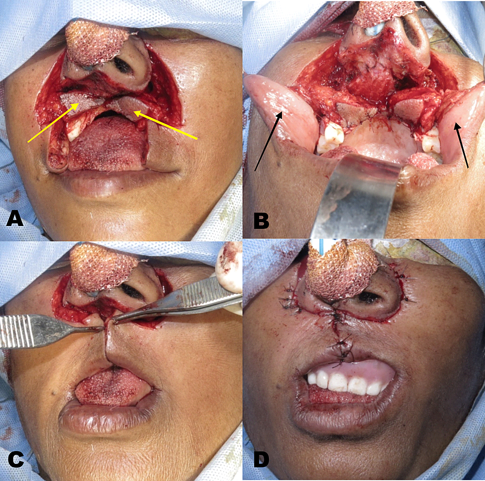Reconstruction-of-the-defect---(A)-Modified-bilateral-perialar-crescent-flap-(B)-Full-thickness-cheek-flap-(C)-Flap-approximation-(D)-Final-closure-with-temporary-obturator