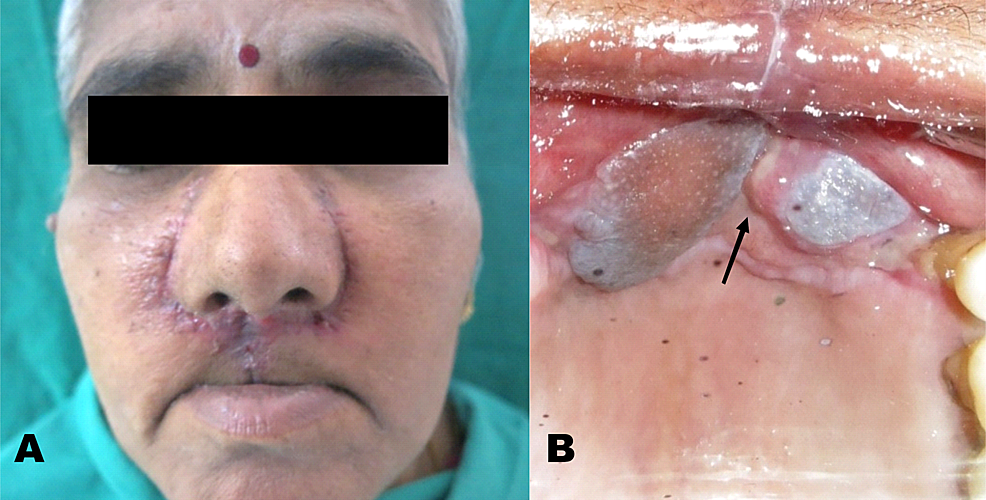 Post-operative-assessment-shows-satisfactory-wound-healing---(A)-Extra-oral-view-(B)-Intra-oral-view