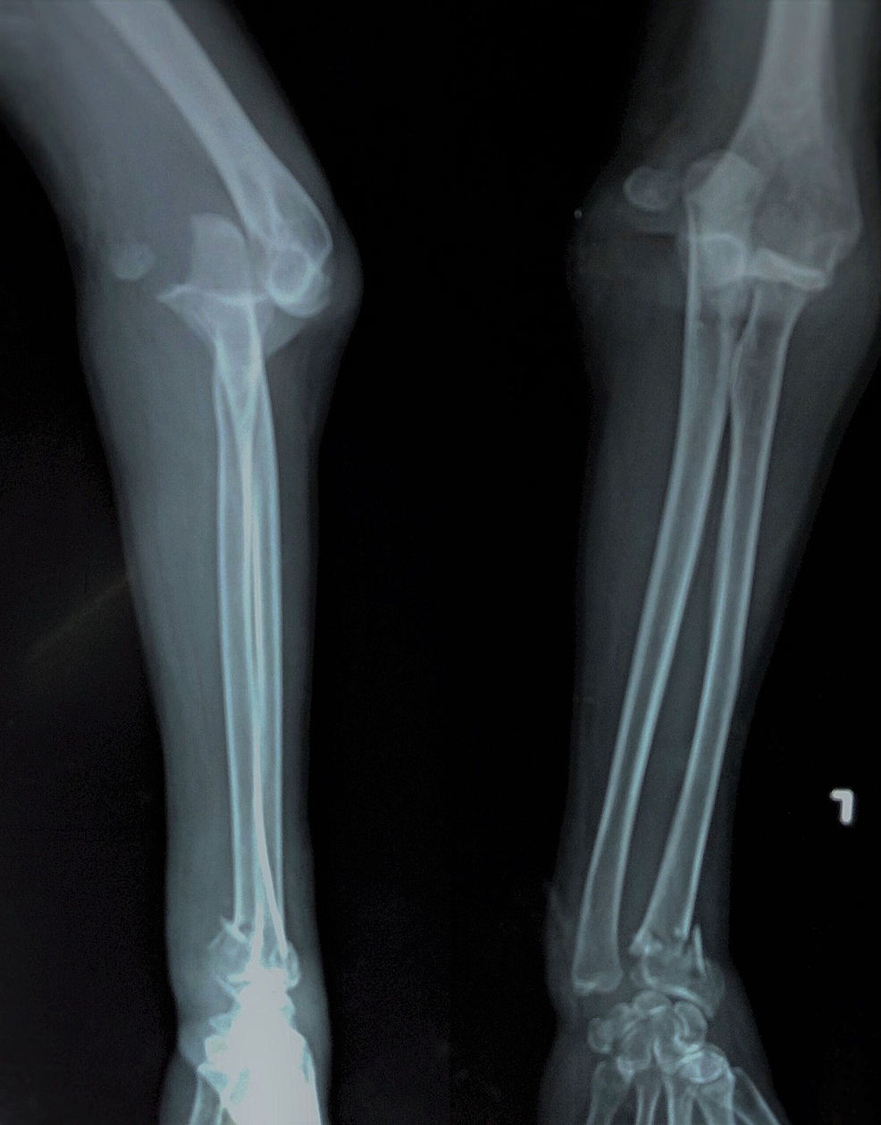 Anterior-elbow-dislocation-along-with-the-lateral-epicondyle-fracture.