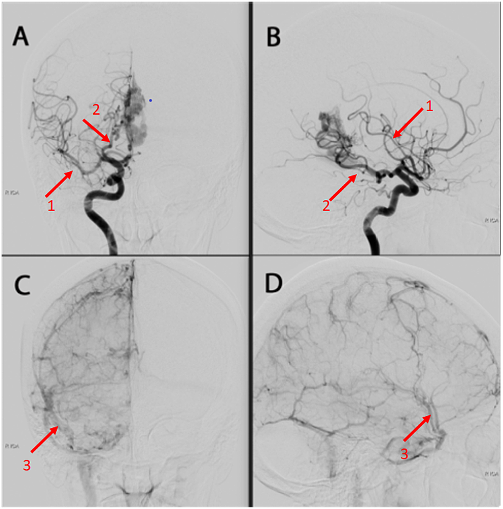 A-&-B-=--Right-internal-carotid-artery-injection,-anteroposterior-and-lateral-views,-mid-arterial-phase-C-&-D-=-Right-internal-carotid-artery-injection,-anteroposterior-and-lateral-views,-late-arterial-phase.