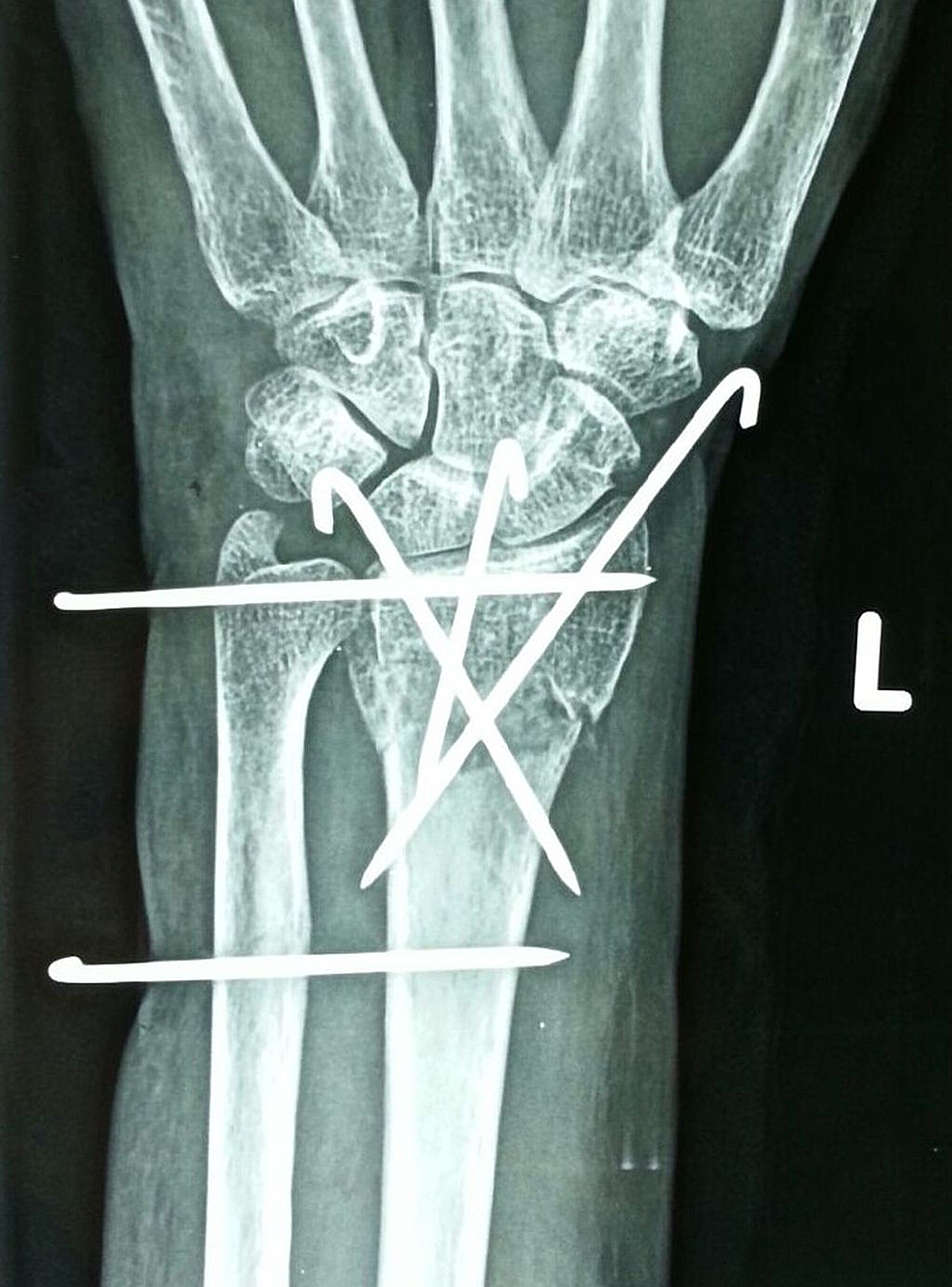 Left-distal-radius-pinning---anteroposterior-view.