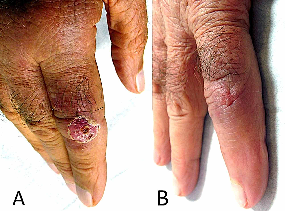 Asymptomatic-erythematous,-scaly-nodule-over-the-proximal-interphalangeal-joint-of-the-right-index-finger