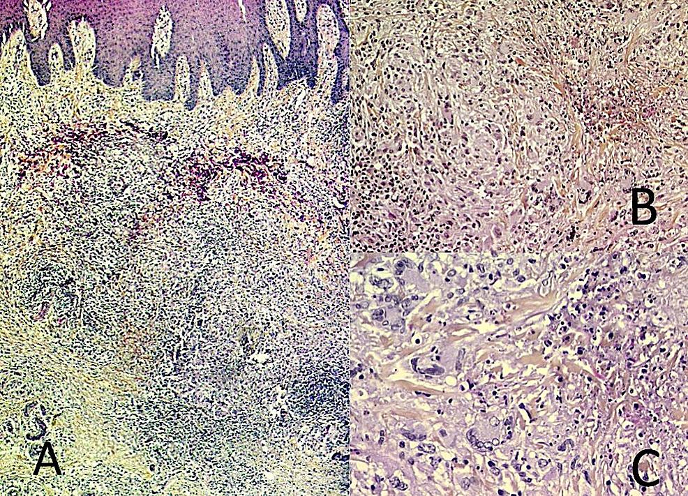 Microscopic-examination-of-the-skin-biopsy