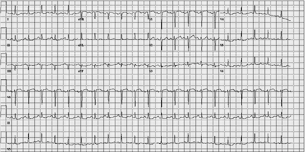 ECG-at-the-Time-of-Symptom-Onset