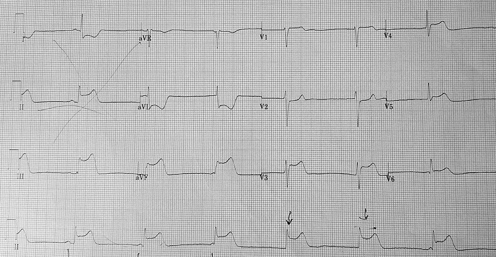 Initial-electrocardiogram-(ECG)-on-patient-presentation