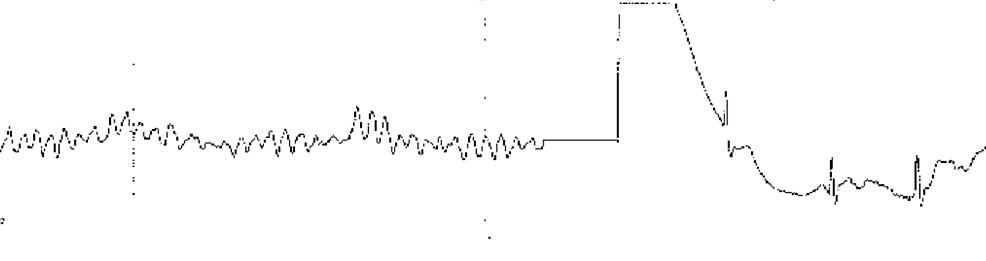Ventricular-fibrillation-before-cardioversion
