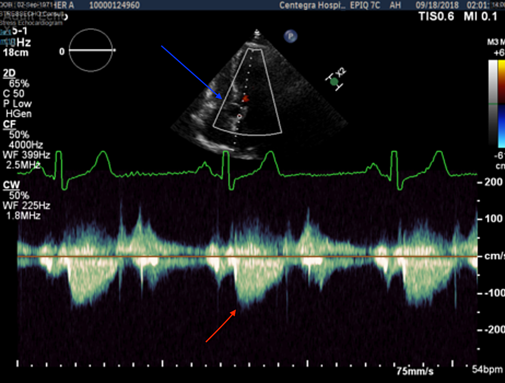 Stress-echocardiography-aortic-view-showing-mitral-cyst-(blue-arrow)-and-normal-peak-velocity-with-no-left-ventricle-outflow-tract-obstruction-pre-exercise-(red-arrow)