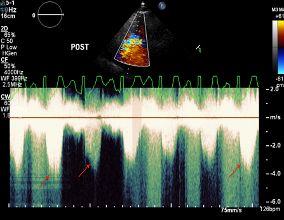 Post-exercise-echocardiography-showing-late-peaking-dagger-shaped-transient-left-ventricle-outflow-tract-obstruction-(red-arrows)