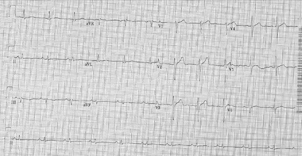 Electrocardiogram-(ECG)-in-the-coronary-care-unit