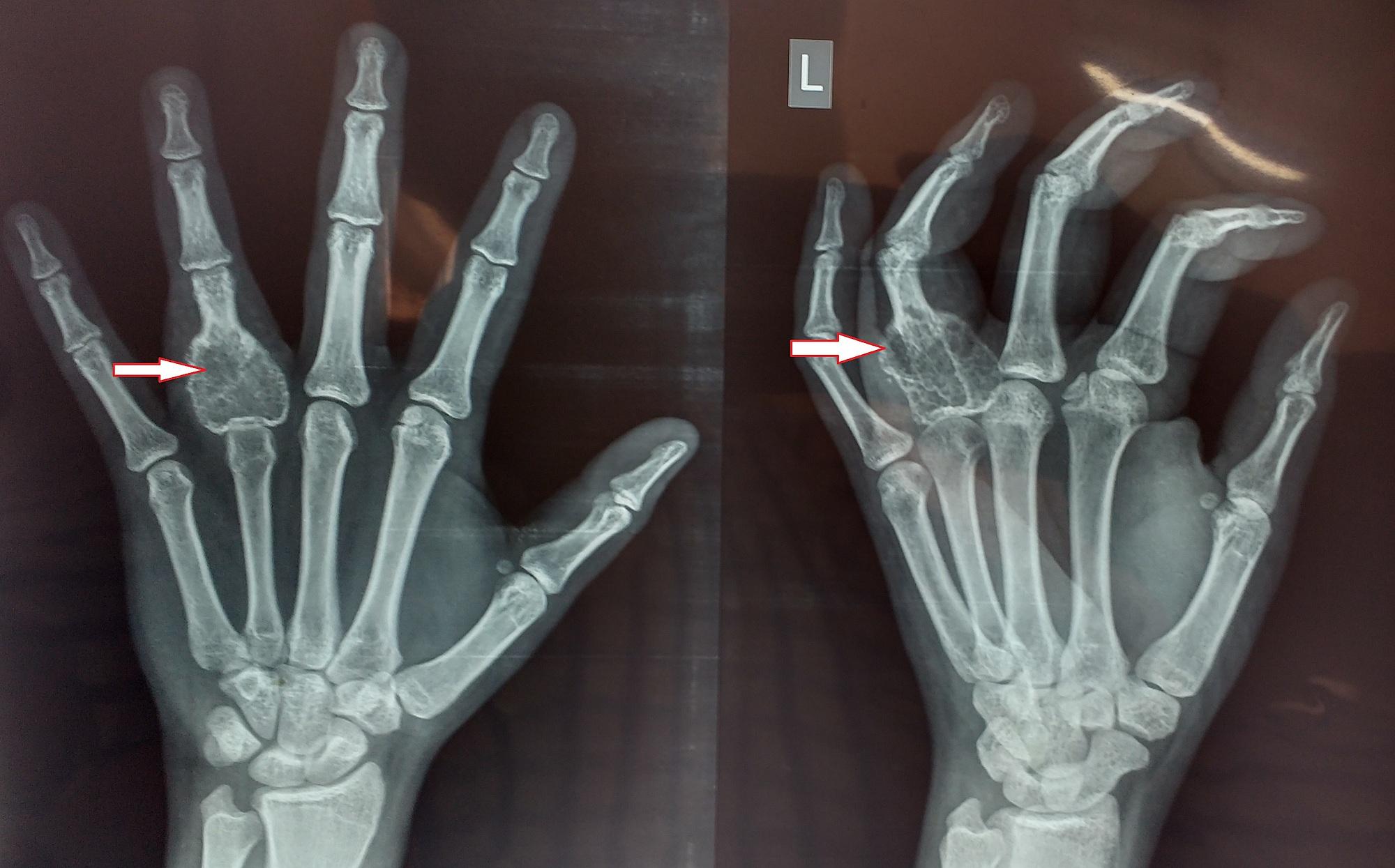 Cureus | Giant Cell Tumour of Proximal Phalanx of Ring Finger: Case ...
