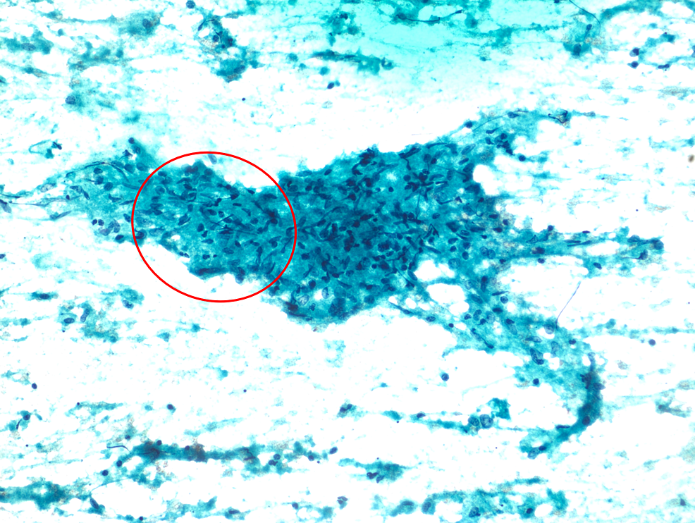 Papanicolaou-staining-of-a-liver-biopsy-sample,-showing-an-epithelioid-cell-granuloma-on-a-background-of-necrosis-(10x-magnification)