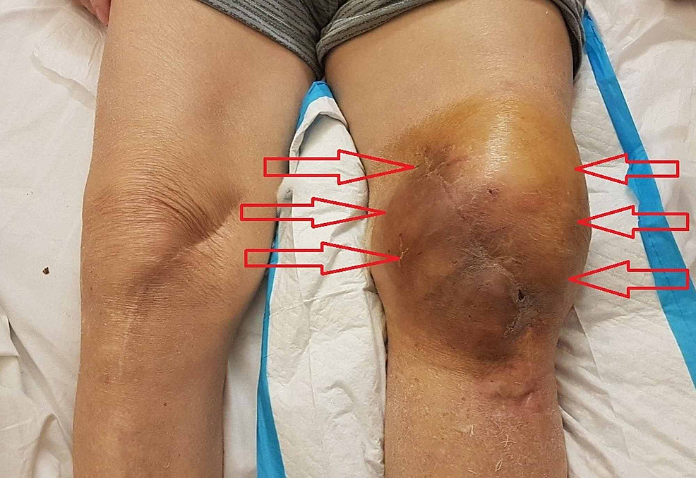 Severe-hemarthrosis-of-the-left-knee-after-16-days-of-tigecycline-administration