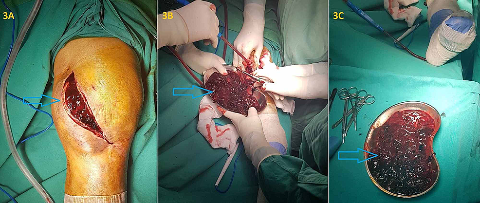 Surgical-debridement-of-the-knee-10-days-after-the-discontinuation-of-tigecycline,-which-showed-excessive-clotted-blood-accumulation