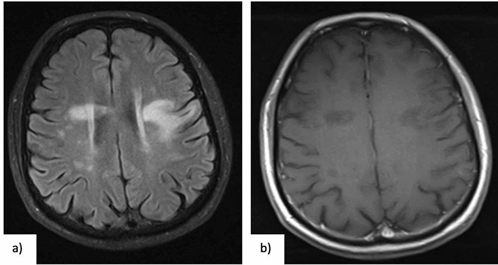 (a)-Brain-MRI-(05-07-2017)-performed-after-corticotherapy,-showing-reduction-of-previous-lesions,-in-T2-FLAIR-(axial),-and-(b)-correspondent-reduction-of-hypointense-lesions-in-T1-(axial),-with-almost-no-gadolinium-enhancement.