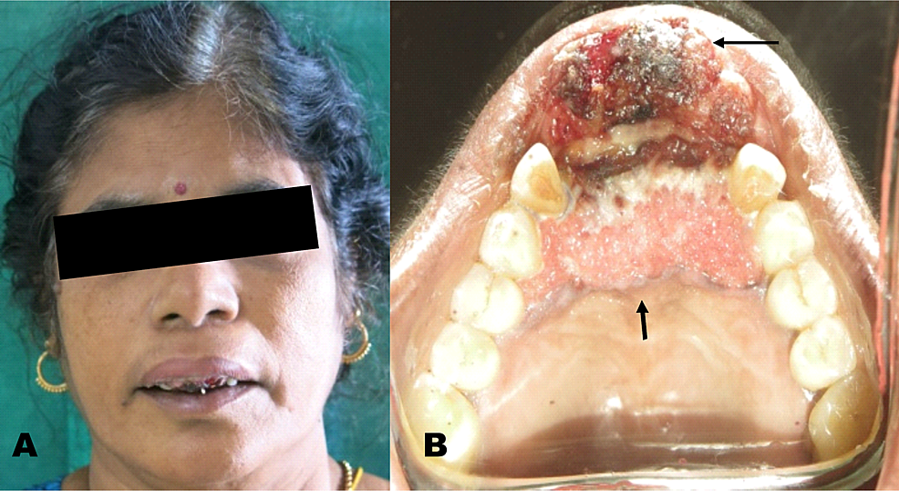 Extension-of-the-lesion---(A)-Extra-oral-view-(B)-Intra-oral-view