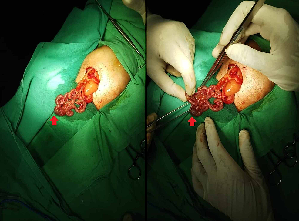 Exploratory-laparotomy-showing-a-dilated-duodenum-and-proximal-jejunal-atresia-with-multiple-segments-within-type-IIIb-(apple-peel)-atresia