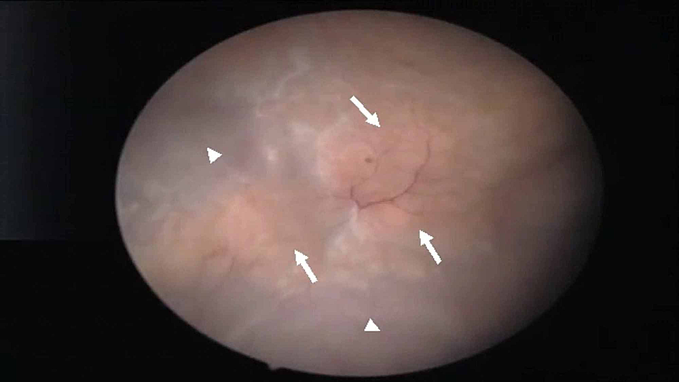 Cystoscopic-view-of-the-bladder-revealing-a-yellowish-and-calcified-sessile-like-lesions-(arrows)-located-at-the-dome-and-the-right-lateral-wall-of-the-bladder.-No-polypoid-lesions-were-noted.-Normal-bladder-wall-urothelium-is-also-seen-(arrowheads).