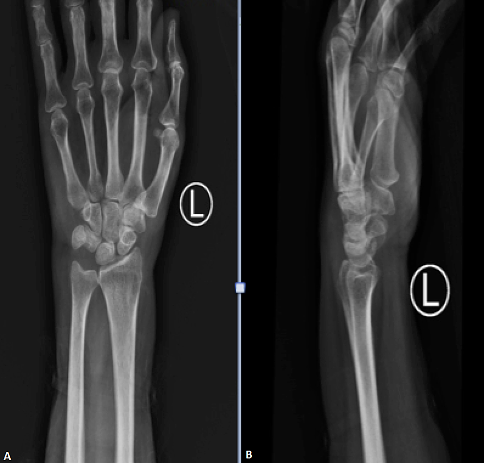X-ray-film-of-the-left-wrist-on-admission;-increased-soft-tissue-shadow-with-no-obvious-abnormality