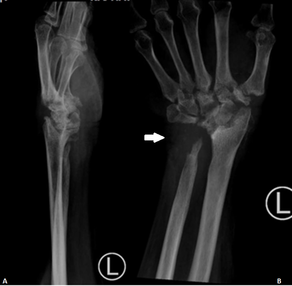X-ray-film-of-the-left-wrist-after-one-year-of-antituberculous-therapy.-Based-on-Figure-4B,-there-is-erosion-and-a-lytic-lesion-around-the-bony-skeleton-at-the-wrist.-Mild-reduction-of-the-bony-density-is-seen-at-the-carpals-and-metacarpals.