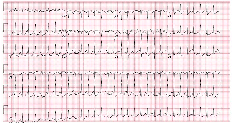 EKG-during-initial-presentation-in-emergency-department