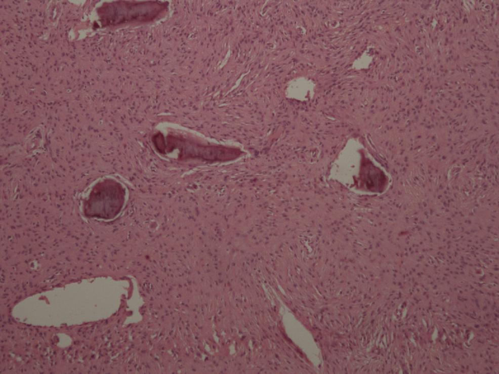 Histological-image-of-osteosarcoma.