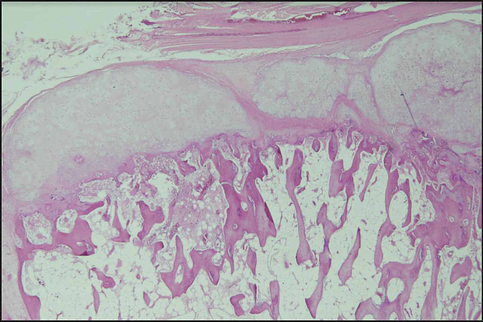 Histopathology-showing-the-cartilaginous-cap-with-the-underlying-mature-bone-trabeculae-and-evidence-of-endochondral-ossification-suggestive-of-osteochondroma