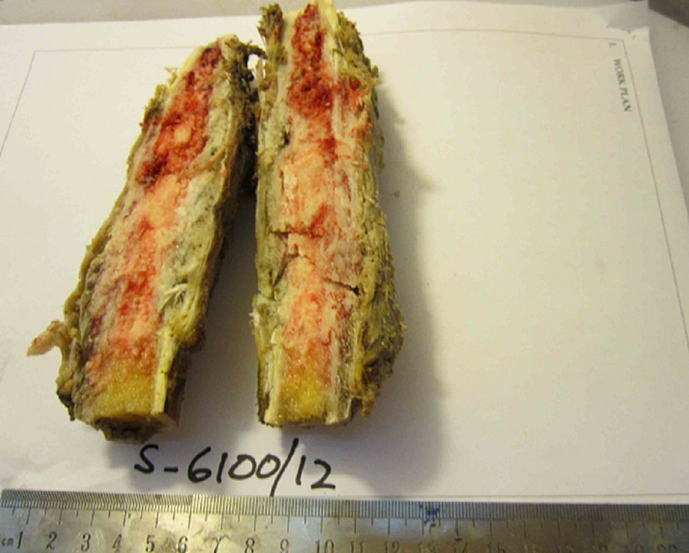 Gross-specimen-of-osteosarcoma-on-cut-section-showing-intramedullary-invasion.