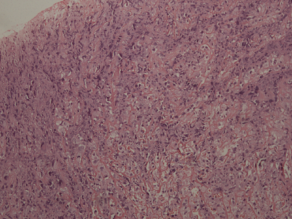 Histological-image-of-fibrous-dysplasia.-