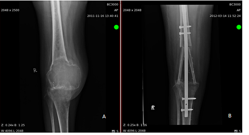 Radiological-appearance-of-giant-cell-bone-tumor-of-distal-femur,-AP-view-(A).-Radiological-image-of-intramedullary-nail-in-distal-femur-and-proximal-tibia-with-double-barrel-FVFG,-three-months-post-op-(B).