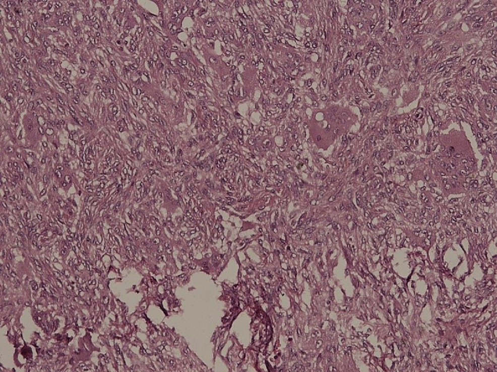 Histological-image-of-giant-cell-tumor.