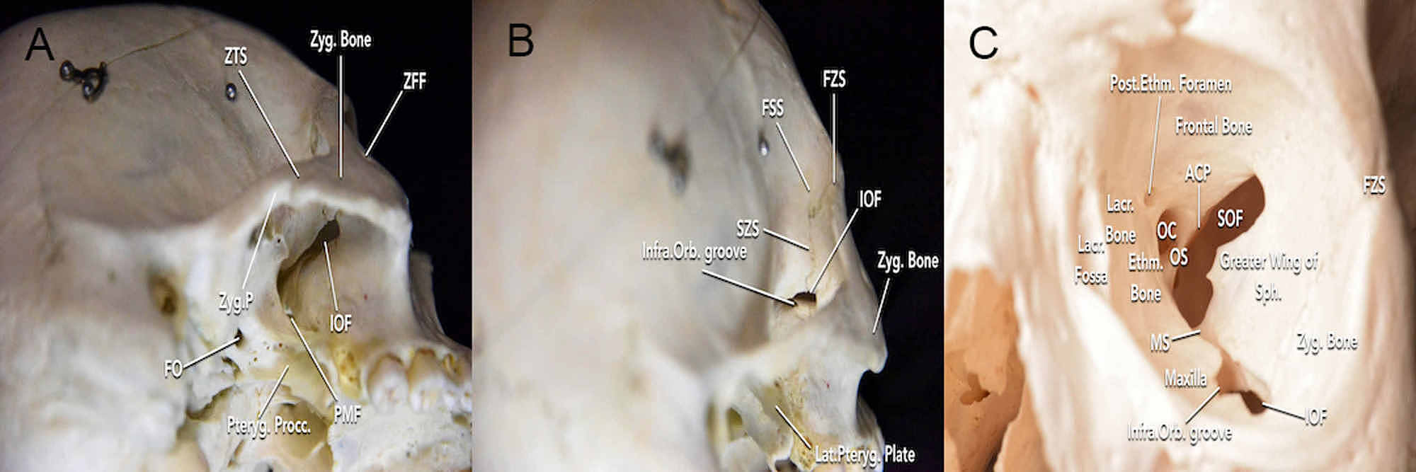 https://www.cureus.com/articles/23943-immersive-surgical-anatomy-of-the-frontotemporal-orbitozygomatic-approach