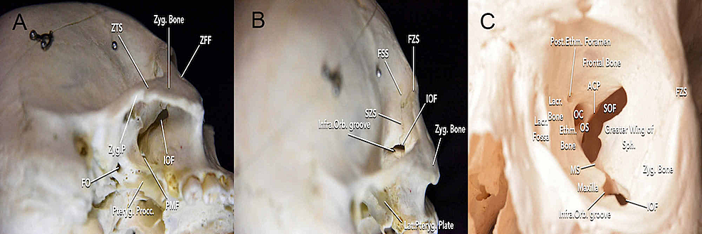 Visualization-of-the-bone-anatomy-surrounding-the-inferior-orbital-fissure