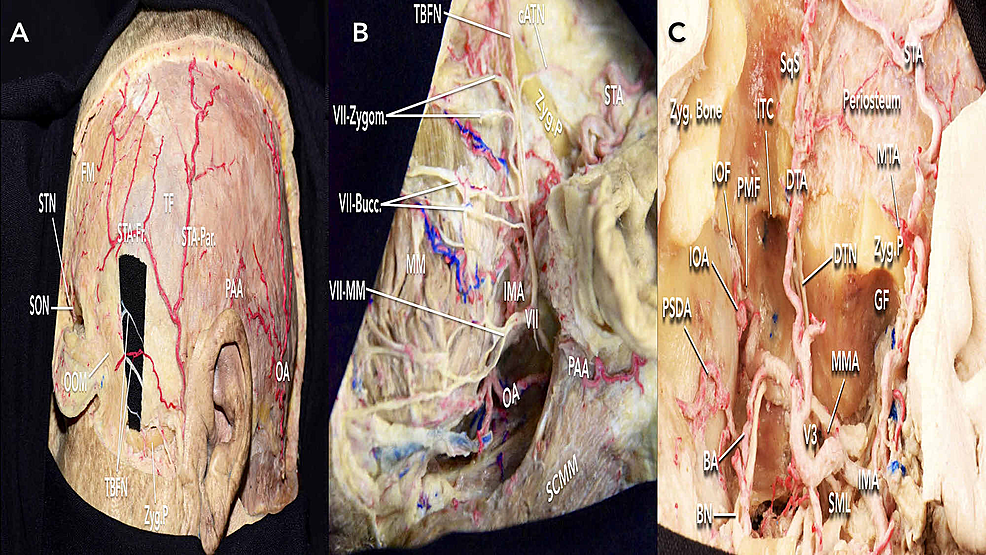 Arteries-and-nerves-relevant-to-the-frontotemporal-zygomatic-(FTOZ)-approach