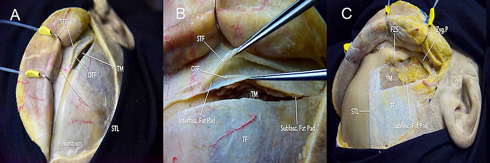 Fascial-dissection