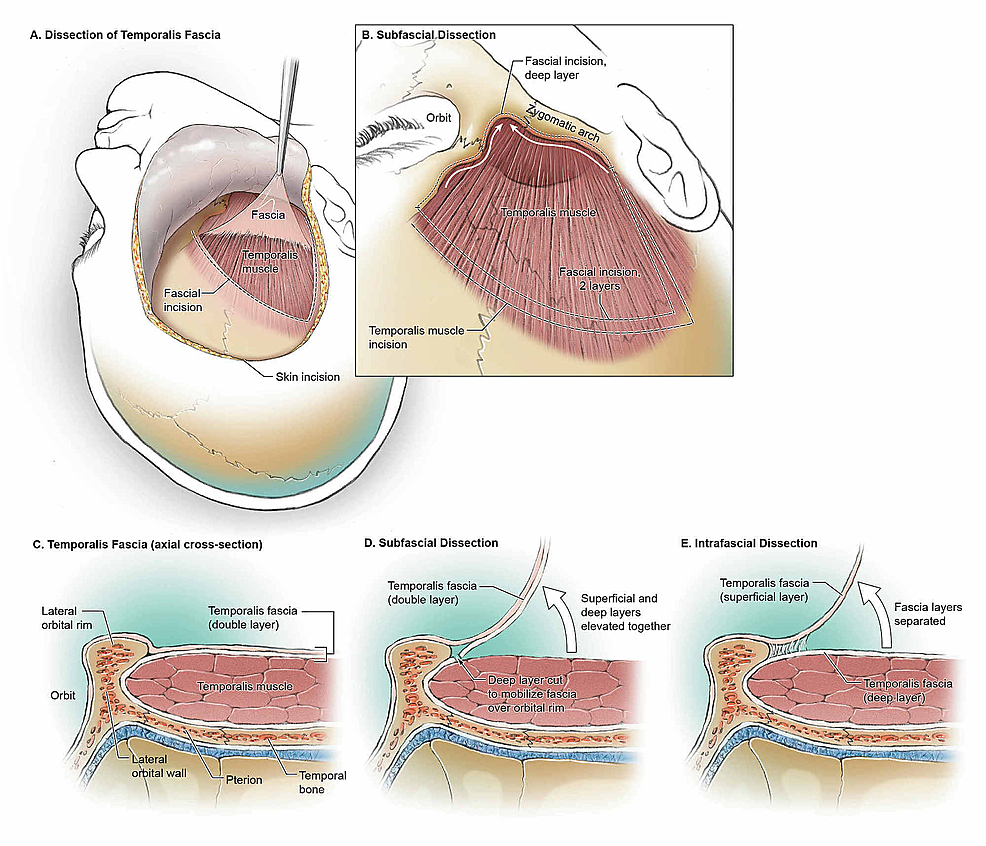 Overview-of-the-intrafascial-and-subfascial-dissections