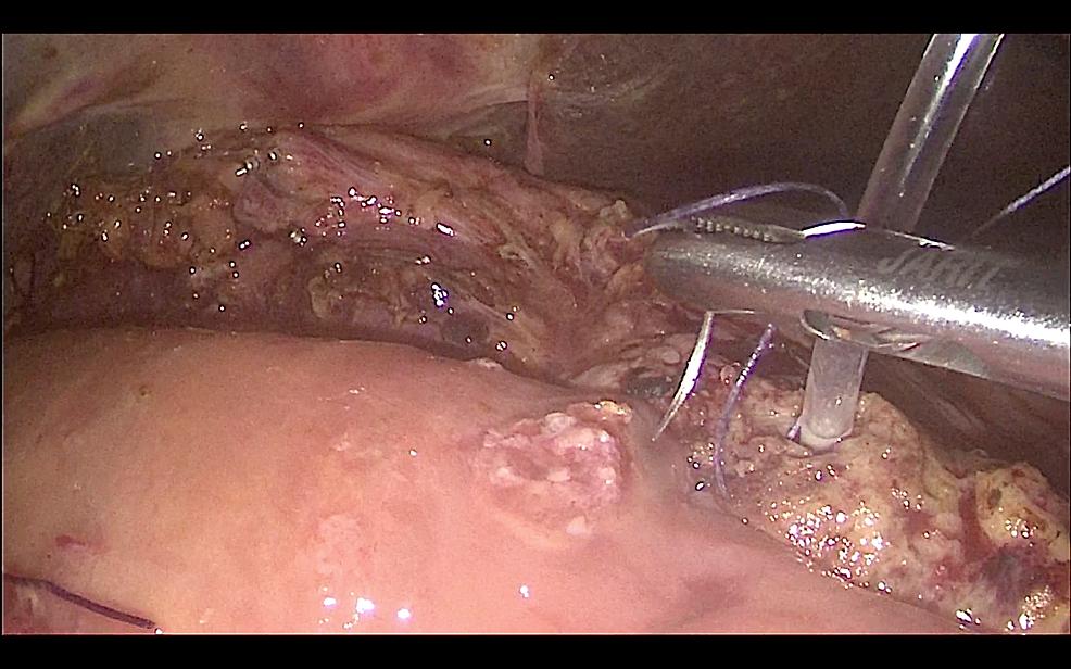 Creation-of-a-sutured-pancreaticojejunostomy