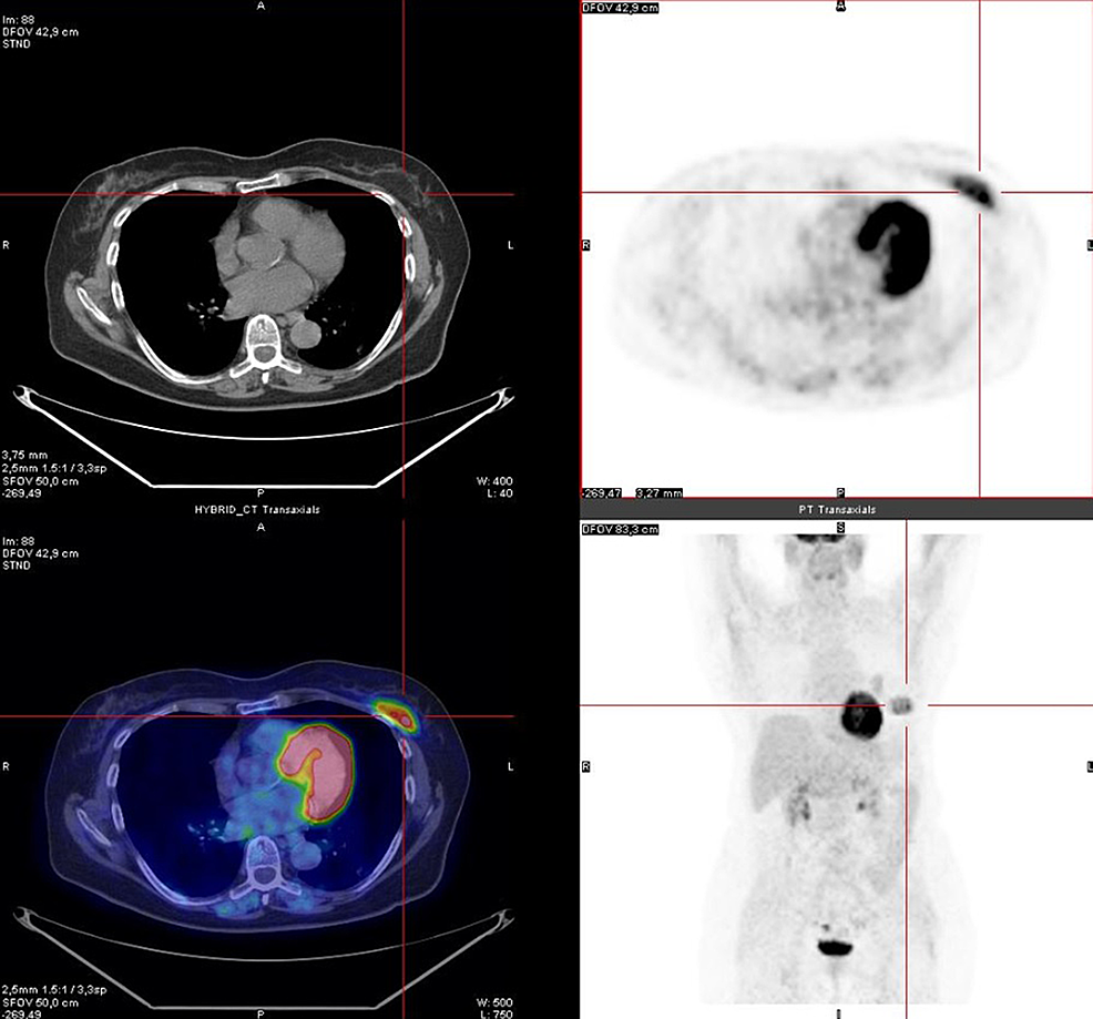 PET/CT-image:-abnormal-uptake-of-FDG-at-the-great-left-pectoral-muscle-(SUV-max-5.8).-Histological-examination-led-to-the-diagnosis-of-hibernoma.-