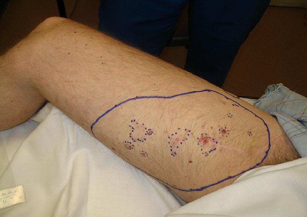 pT2bN1-M0-melanoma-right-lower-leg