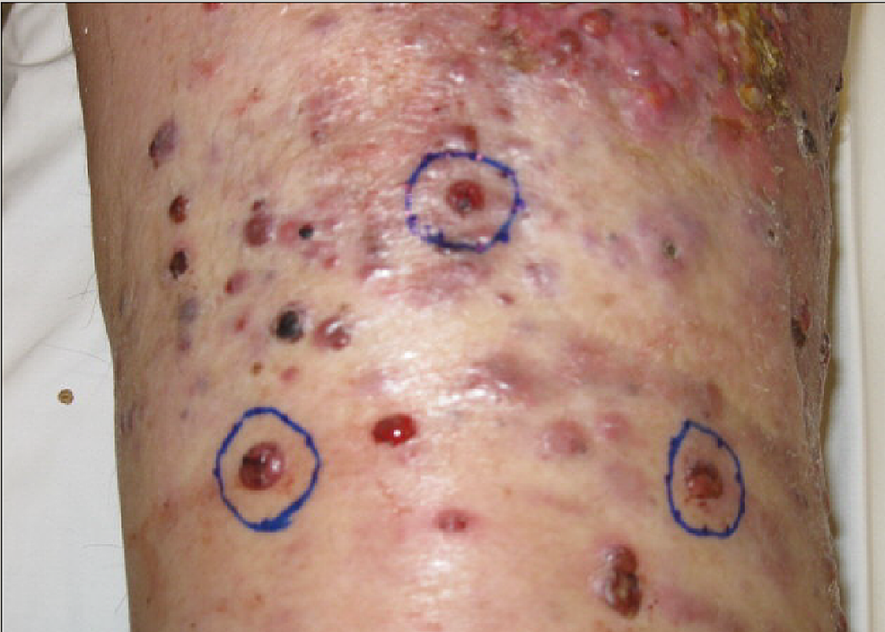 pT4-N2a-M0-melanoma-right-foot