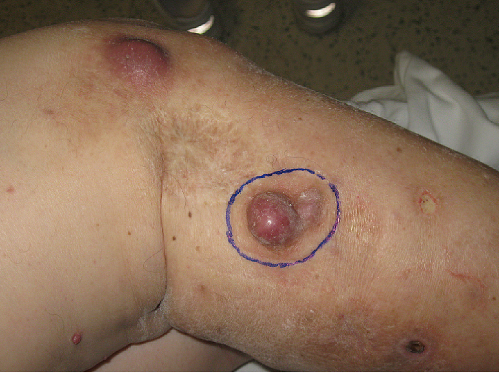 T3N0M0-right-knee-melanoma-