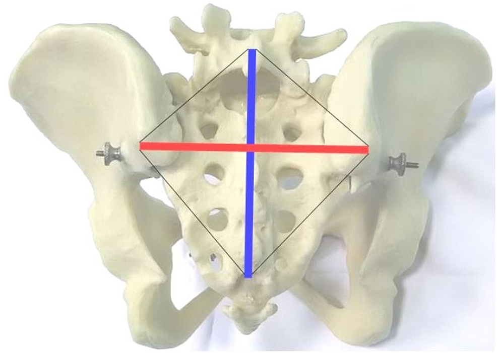 Michaelis'-sacral-rhomboid-area