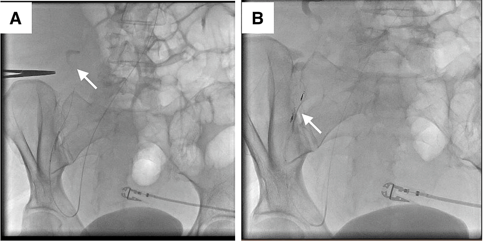 Transcatheter-angiography-of-the-right-inferior-epigastric-artery-and-the-ascending-branch-of-the-right-deep-circumflex-iliac-artery-with-demonstration-of-extravasation-of-contrast-medium-from-the-ascending-branch-of-the-right-deep-circumflex-iliac-artery-(A).-Resolution-of-extravasation-after-transcatheter-embolization-of-the-ascending-branch-of-the-right-deep-circumflex-iliac-artery-(B)