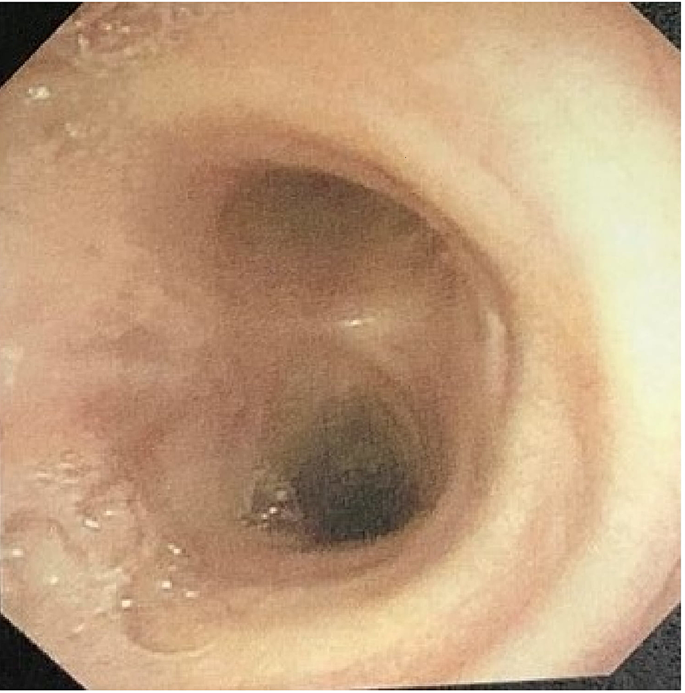 No-evidence-of-tracheal-defect-in-repeat-bronchoscopy-performed-after-a-month