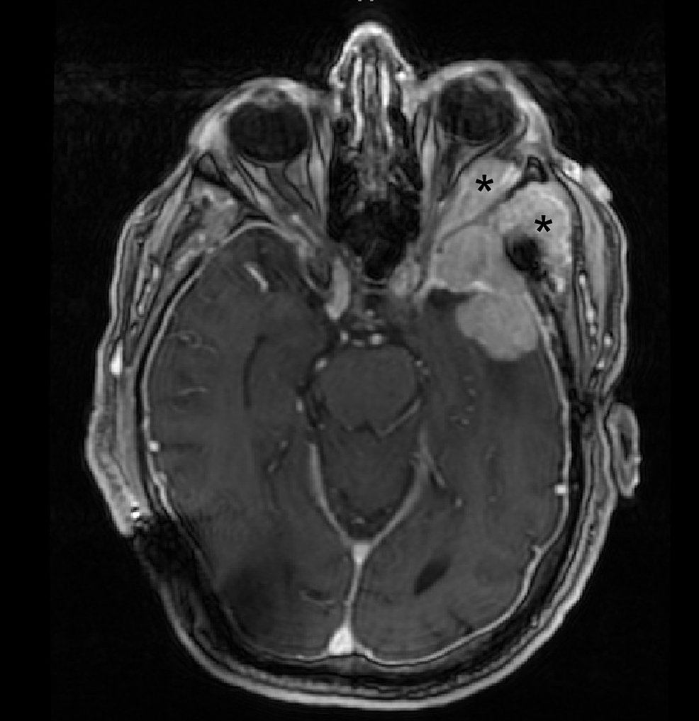 Preoperative-axial-MRI-demonstrating-tumor-involvement-of-the-lateral-orbit-and-temporalis-muscle