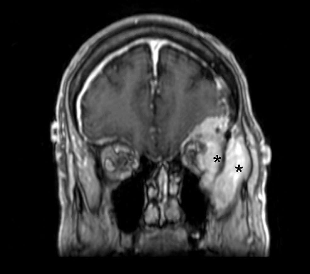 Preoperative-coronal-MRI-demonstrating-tumor-involvement-of-the-lateral-orbit-and-temporalis-muscle