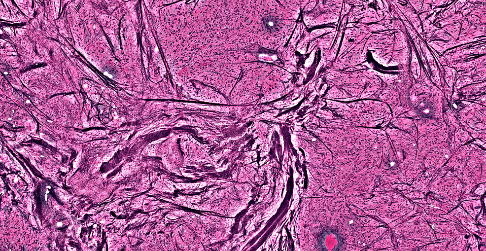 Dark-streaks-showing-large-acellular-collagen-fibers,-representing-bone-fragments,-with-active-tumor-cells-around-it