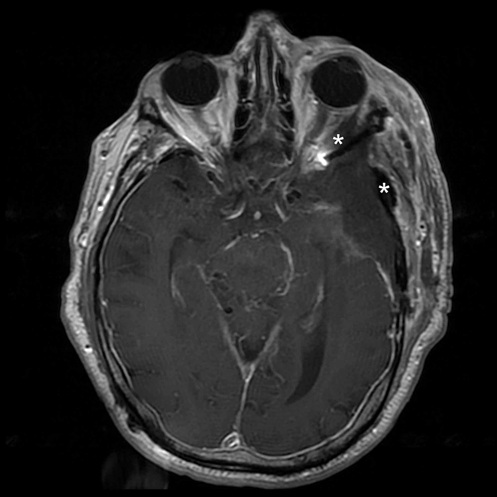 Postoperative-axial-MRI-demonstrating-resection-of-the-intraorbital-and-intramuscular-tumor-component