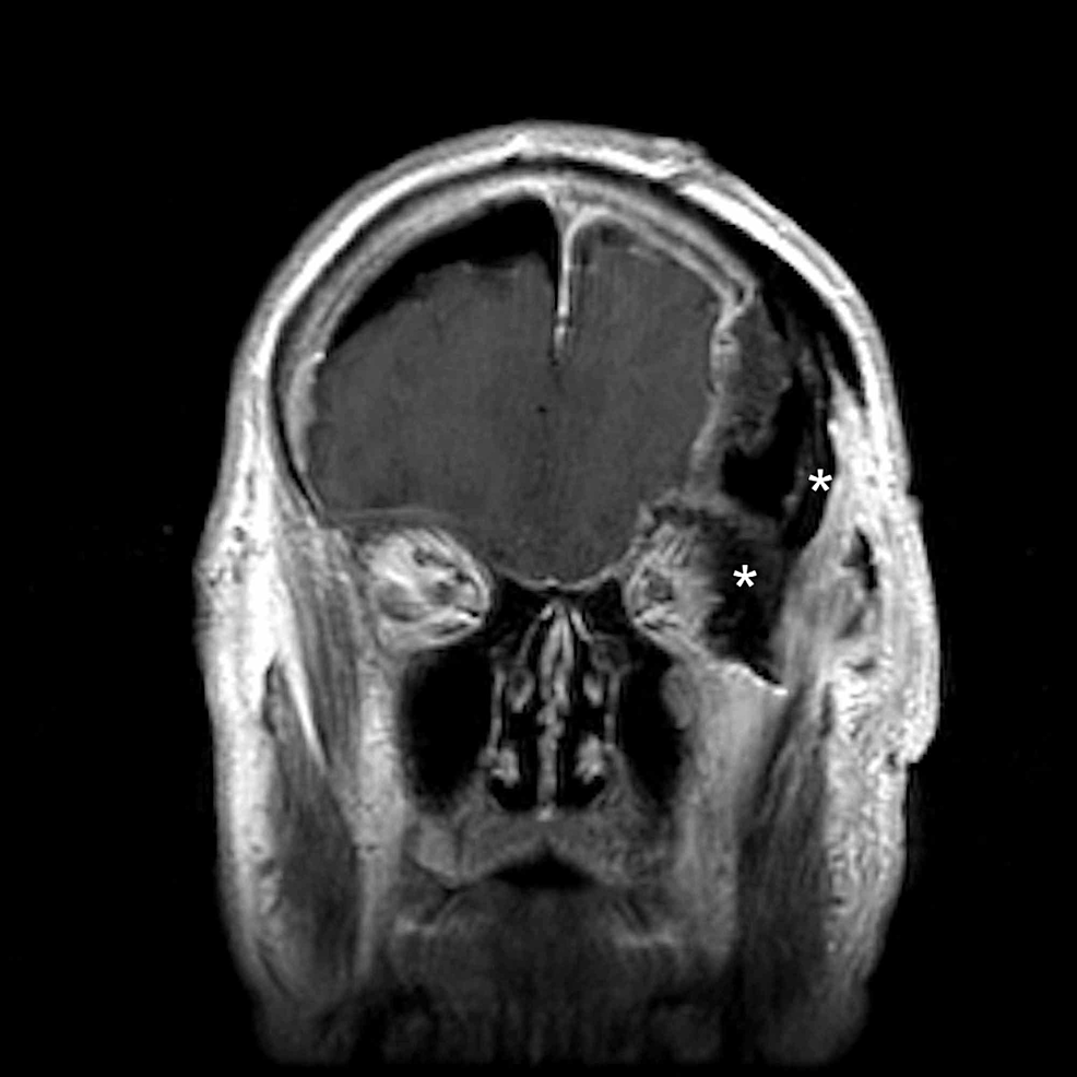 Postoperative-coronal-MRI-demonstrating-resection-of-the-intraorbital-and-intramuscular-tumor-component