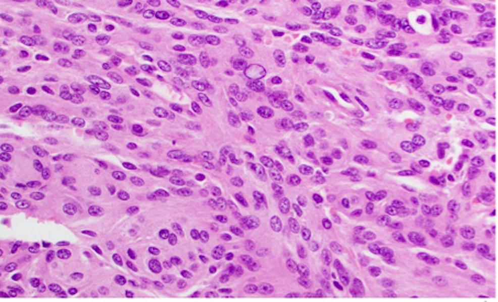Haemotoxylin-and-Eosin-(H&E)-staining-of-a-WHO-grade-II-meningioma-at-high-power-magnification