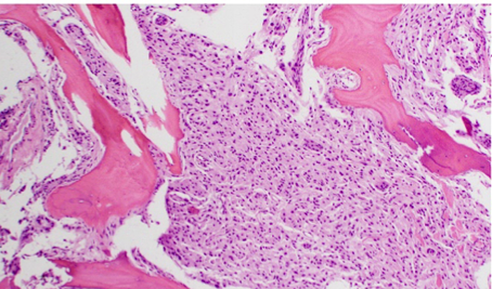 H&E-staining-of-WHO-Grade-II-meningioma-at-high-power-magnification-demonstrating-bone-invasion